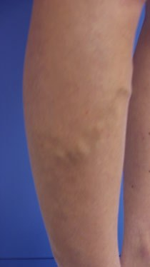 Before and after results of Endovenous Thermal Ablation (EVTA)