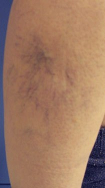 Before and after results of Microsclerotherapy
