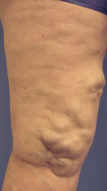 Before and after results of Phlebectomy