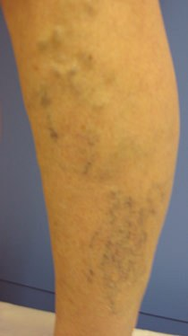 Before and after results of Ultrasound Guided Sclerotherapy